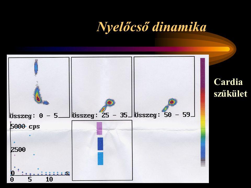 Nyelőcső dinamika Cardia szűkület