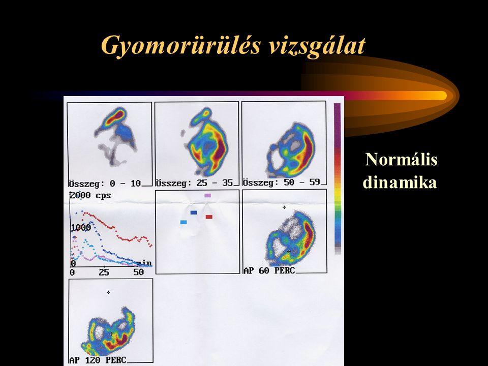 Gyomorürülés vizsgálat Normális dinamika