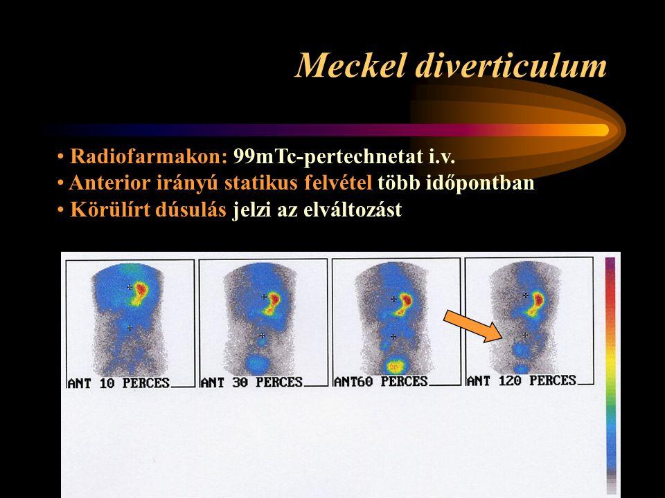 Meckel diverticulum Radiofarmakon: 99mTc-pertechnetat i.v.