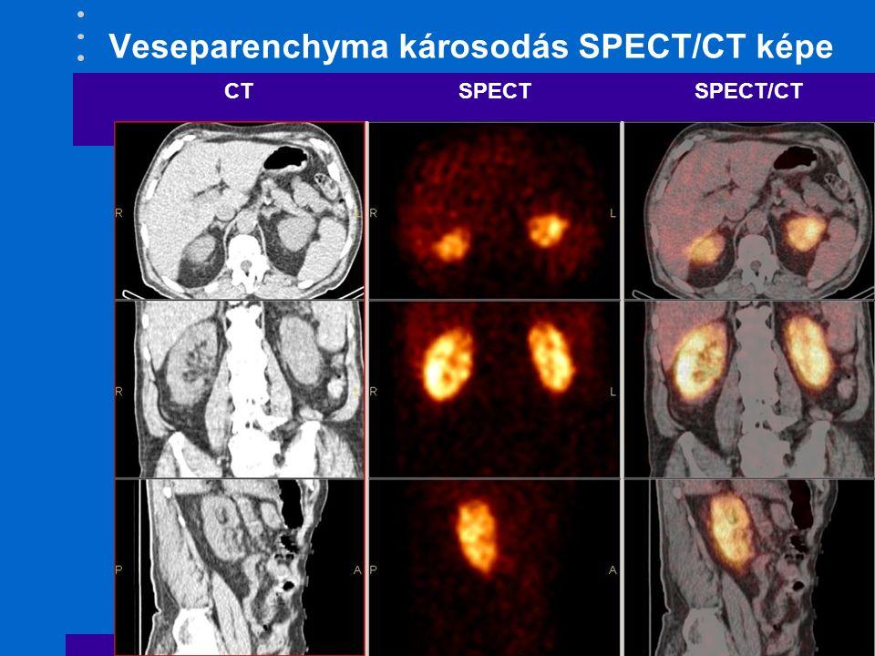 Veseparenchyma károsodás SPECT/CT képe CTSPECT SPECT/CT