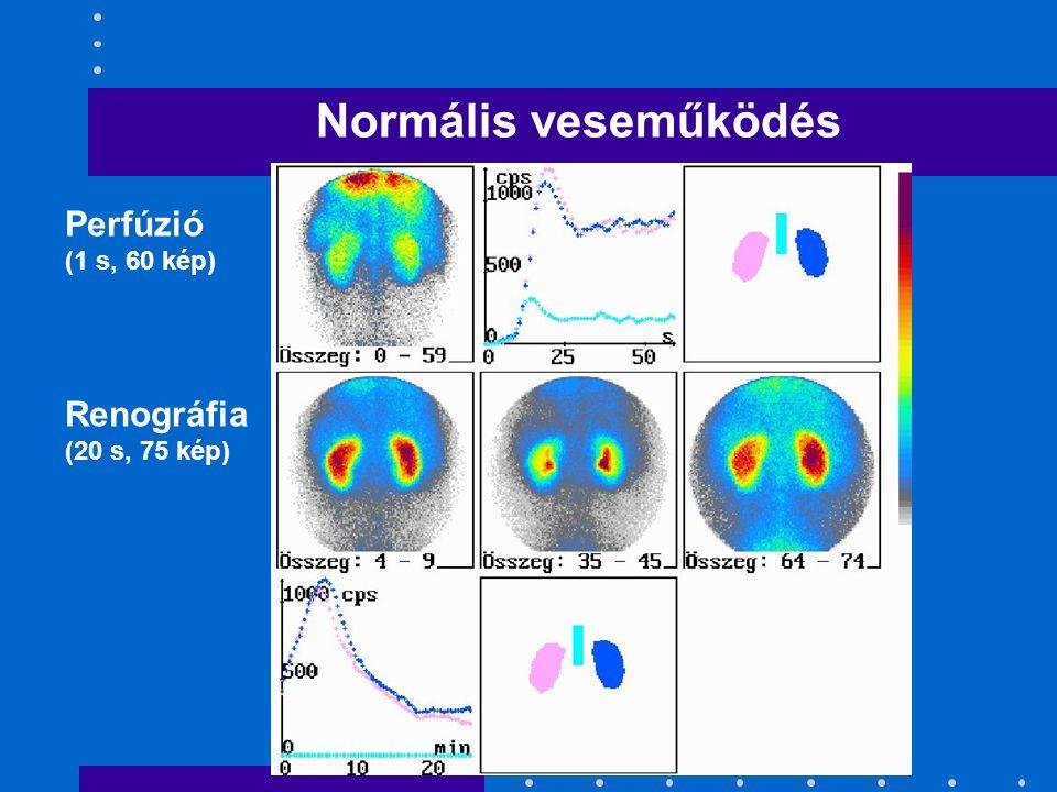 Normális veseműködés Perfúzió (1 s, 60 kép) Renográfia (20 s, 75 kép)