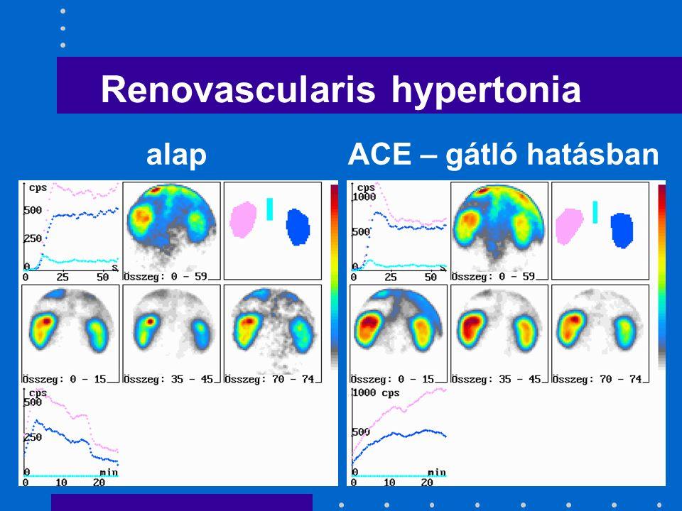 Renovascularis hypertonia alapACE – gátló hatásban