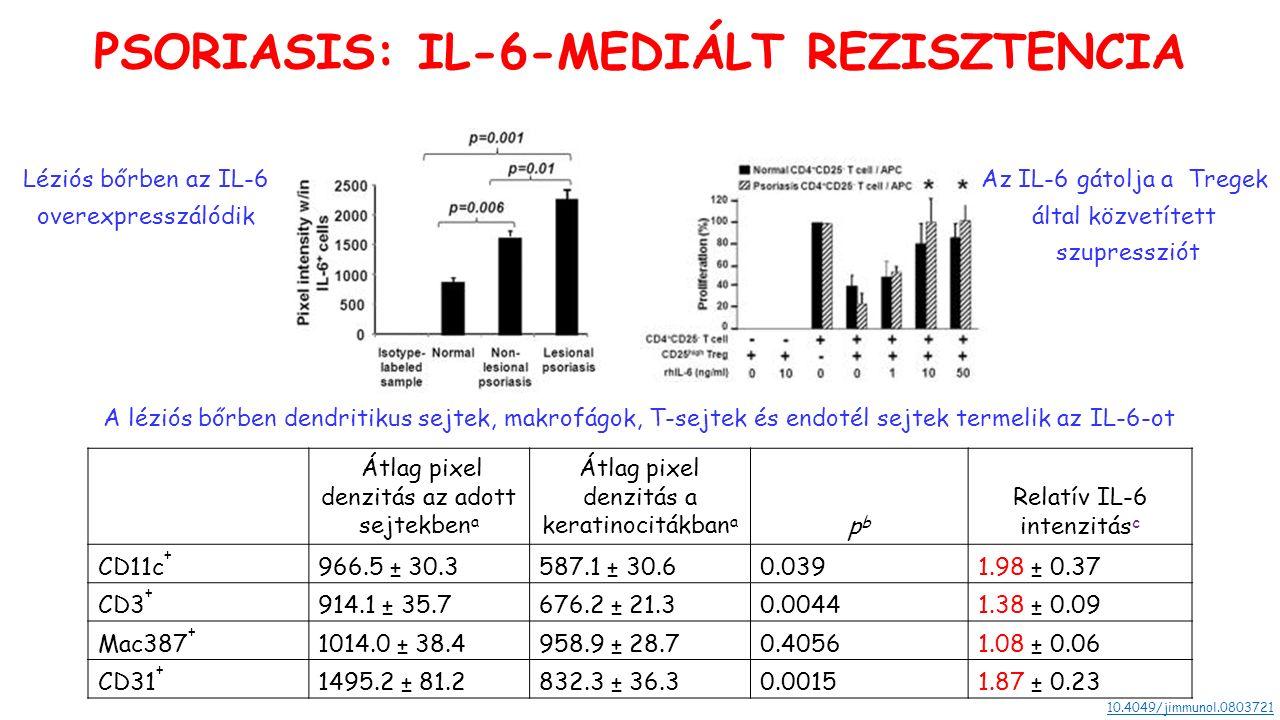 Átlag pixel denzitás az adott sejtekben a Átlag pixel denzitás a keratinocitákban a pbpb Relatív IL-6 intenzitás c CD11c + 966.5 ± 30.3587.1 ± 30.60.0391.98 ± 0.37 CD3 + 914.1 ± 35.7676.2 ± 21.30.00441.38 ± 0.09 Mac387 + 1014.0 ± 38.4958.9 ± 28.70.40561.08 ± 0.06 CD31 + 1495.2 ± 81.2832.3 ± 36.30.00151.87 ± 0.23 PSORIASIS: IL-6-MEDIÁLT REZISZTENCIA Léziós bőrben az IL-6 overexpresszálódik A léziós bőrben dendritikus sejtek, makrofágok, T-sejtek és endotél sejtek termelik az IL-6-ot 10.4049/jimmunol.0803721 Az IL-6 gátolja a Tregek által közvetített szupressziót