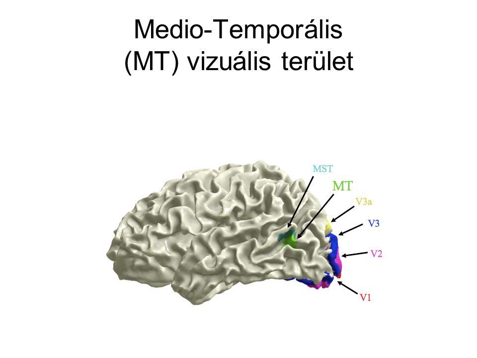 Medio-Temporális (MT) vizuális terület