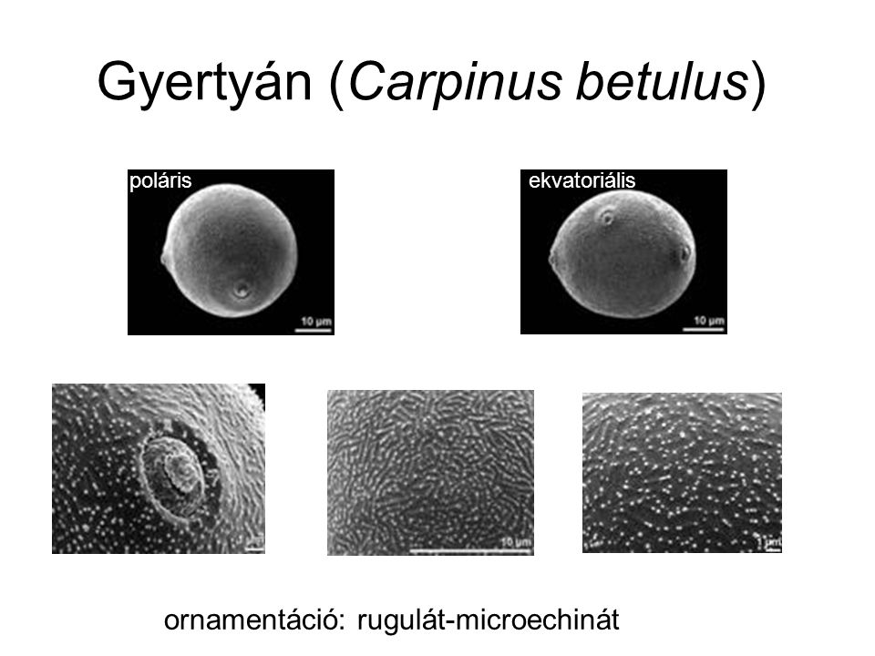 Gyertyán (Carpinus betulus) ekvatoriálispoláris ornamentáció: rugulát-microechinát
