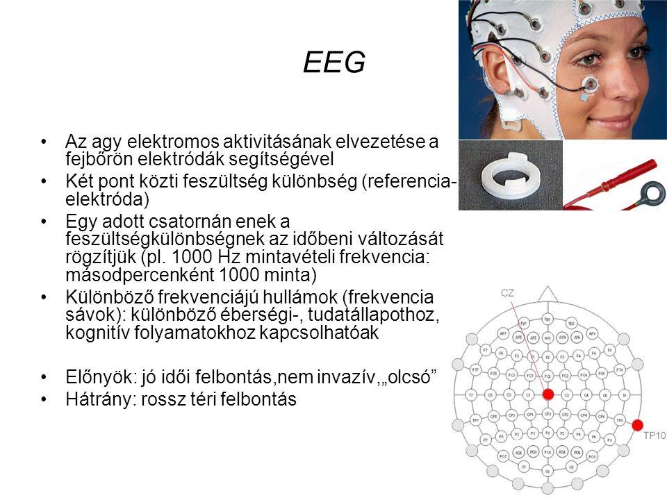 EEG Az agy elektromos aktivitásának elvezetése a fejbőrön elektródák segítségével Két pont közti feszültség különbség (referencia- elektróda) Egy adott csatornán enek a feszültségkülönbségnek az időbeni változását rögzítjük (pl.