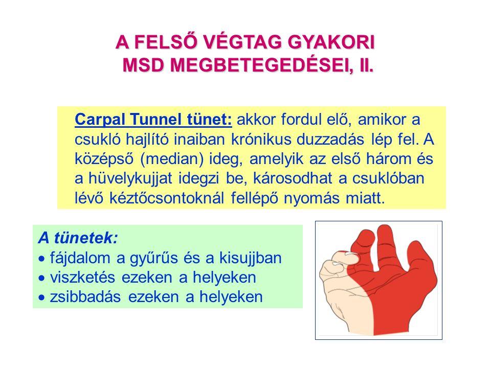 Carpal Tunnel tünet: akkor fordul elő, amikor a csukló hajlító inaiban krónikus duzzadás lép fel.