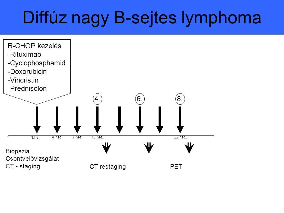 R-CHOP kezelés -Rituximab -Cyclophosphamid -Doxorubicin -Vincristin -Prednisolon 1.hét 4.hét7.hét10.hét...