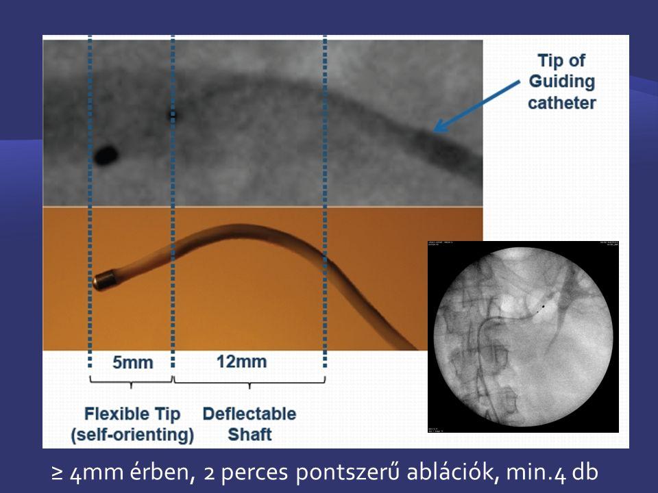 ≥ 4mm érben, 2 perces pontszerű ablációk, min.4 db
