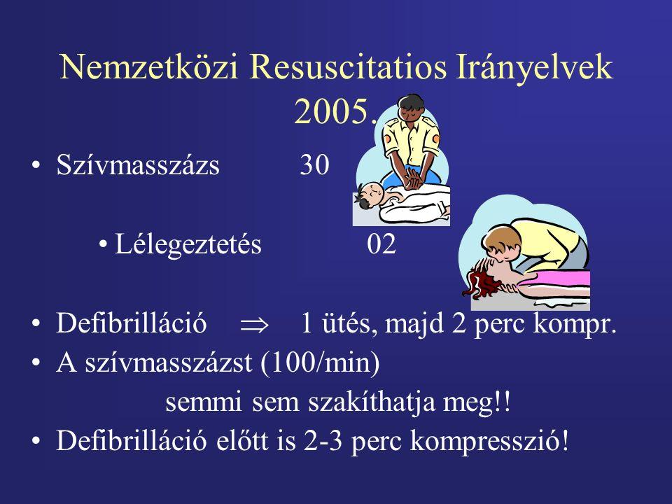Nemzetközi Resuscitatios Irányelvek 2005. Szívmasszázs30 Lélegeztetés02 Defibrilláció  1 ütés, majd 2 perc kompr. A szívmasszázst (100/min) semmi sem