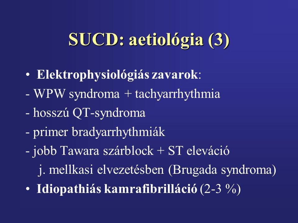 SUCD: aetiológia (3) Elektrophysiológiás zavarok: - WPW syndroma + tachyarrhythmia - hosszú QT-syndroma - primer bradyarrhythmiák - jobb Tawara szárblock + ST eleváció j.