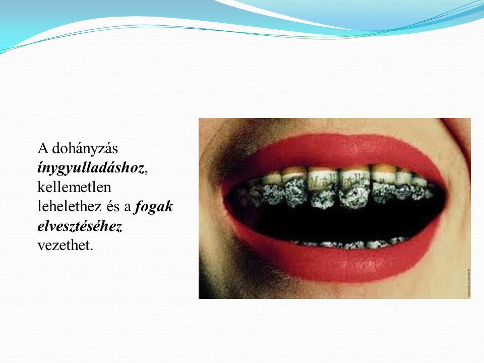 A dohányzás ínygyulladáshoz, kellemetlen lehelethez és a fogak elvesztéséhez vezethet.