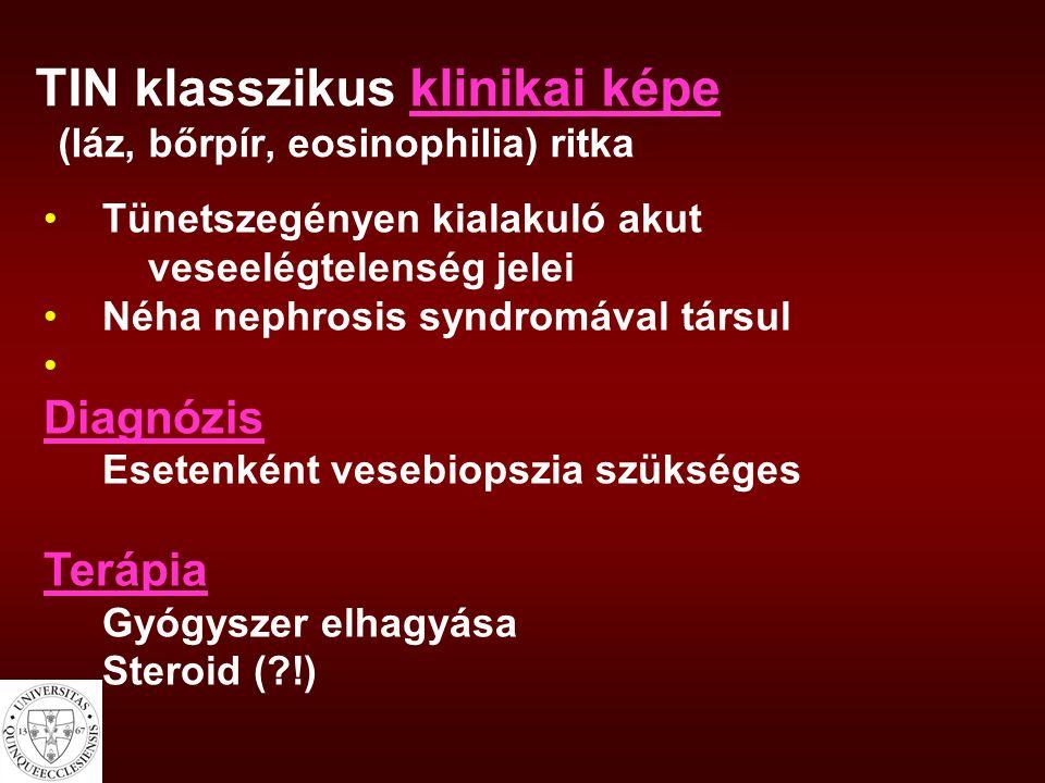 TIN klasszikus klinikai képe (láz, bőrpír, eosinophilia) ritka Tünetszegényen kialakuló akut veseelégtelenség jelei Néha nephrosis syndromával társul