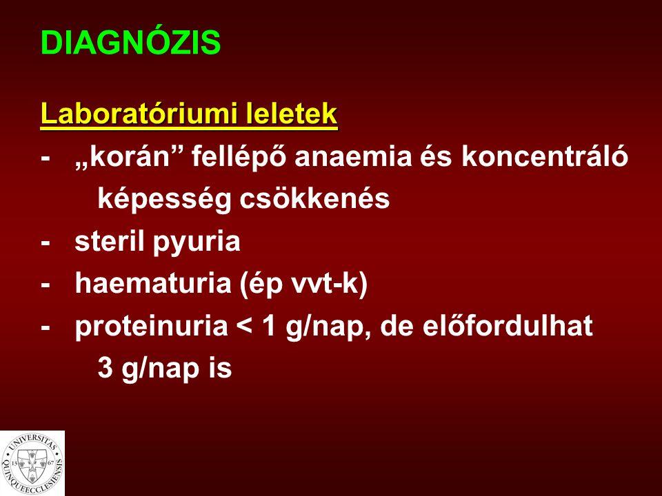 """DIAGNÓZIS Laboratóriumi leletek - """"korán fellépő anaemia és koncentráló képesség csökkenés - steril pyuria - haematuria (ép vvt-k) - proteinuria < 1 g/nap, de előfordulhat 3 g/nap is"""