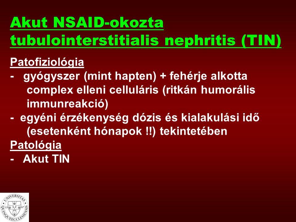 Akut NSAID-okozta tubulointerstitialis nephritis (TIN) Patofiziológia - gyógyszer (mint hapten) + fehérje alkotta complex elleni celluláris (ritkán humorális immunreakció) - egyéni érzékenység dózis és kialakulási idő (esetenként hónapok !!) tekintetében Patológia - Akut TIN