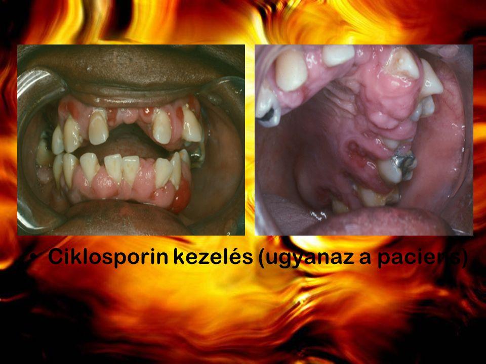 Ciklosporin kezelés (ugyanaz a paciens)