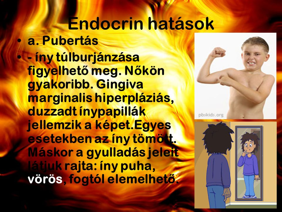 Endocrin hatások a. Pubertás - íny túlburjánzása figyelhet ő meg.