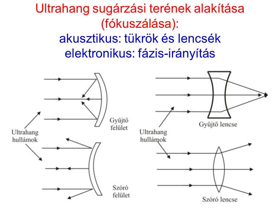 Ultrahang sugárzási terének alakítása (fókuszálása): akusztikus: tükrök és lencsék elektronikus: fázis-irányítás