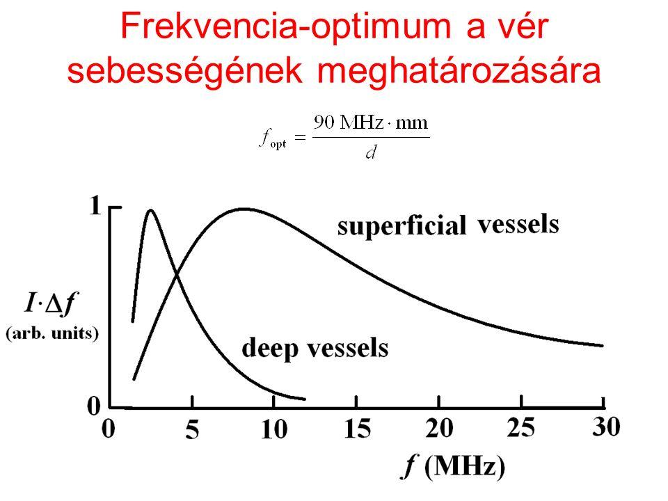 Frekvencia-optimum a vér sebességének meghatározására