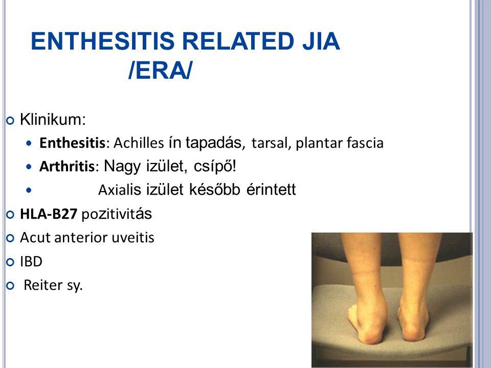 ENTHESITIS RELATED JIA /ERA/ Klinikum: Enthesitis: Achilles ín tapadás, tarsal, plantar fascia Arthritis: Nagy izület, csípő.