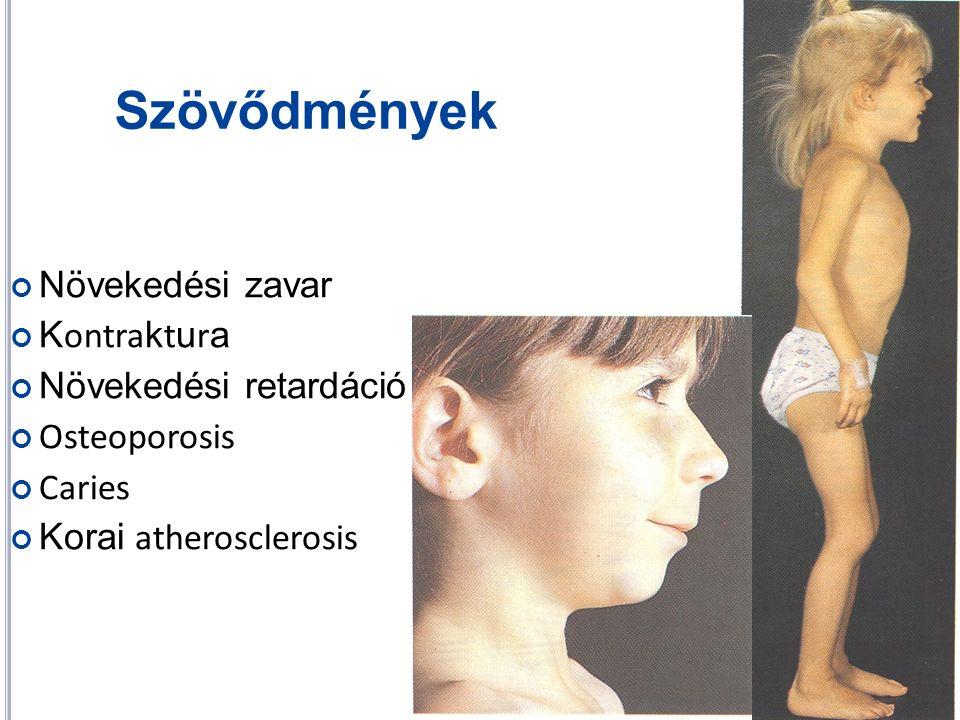 Szövődmények Növekedési zavar K ontra k t u r a Növekedési retardáció Osteoporosis Caries Korai atherosclerosis