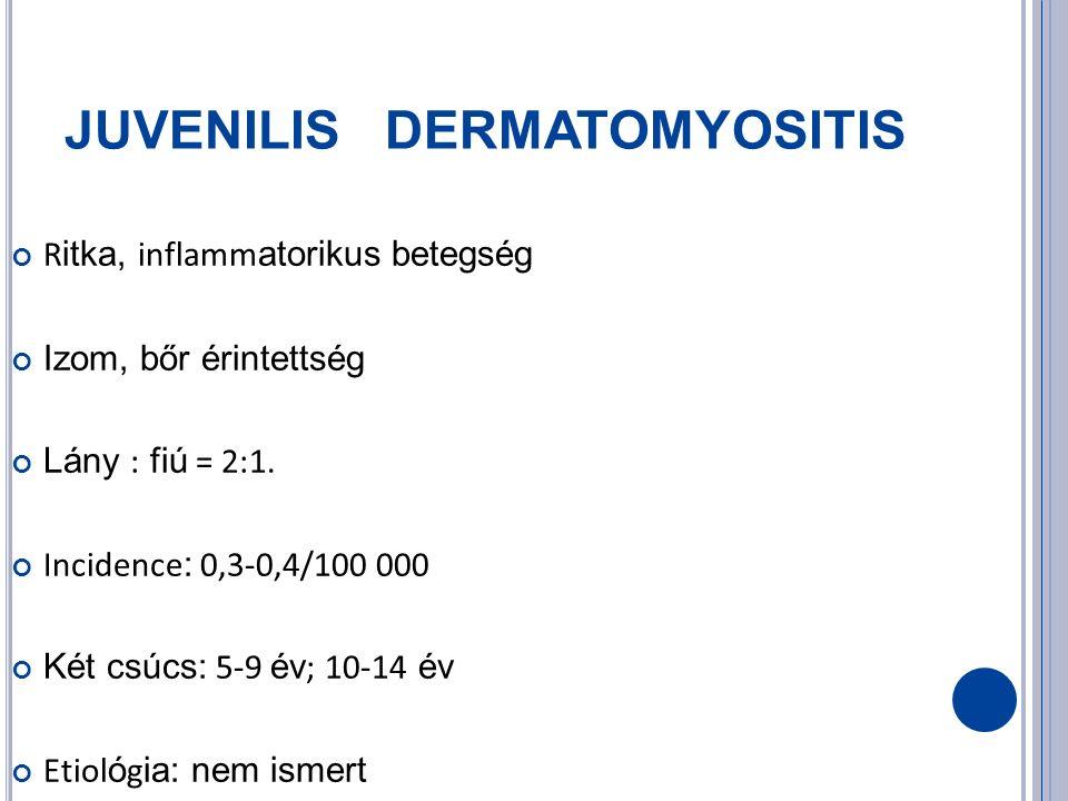 JUVENILIS DERMATOMYOSITIS R itka, inflamm atorikus betegség Izom, bőr érintettség Lány : fiú = 2:1.
