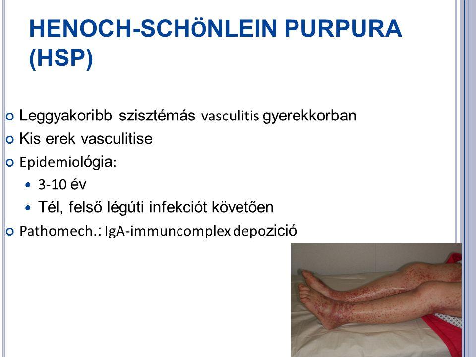 HENOCH-SCH Ö NLEIN PURPURA (HSP) Leggyakoribb szisztémás vasculitis gyerekkorban Kis erek vasculitise Epidemiol ógia : 3-10 év Tél, felső légúti infekciót követően Pathomech.: IgA-immuncomplex depo zició