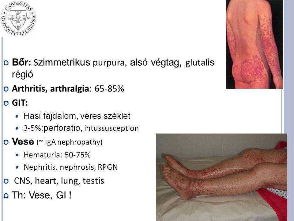 Bőr : S zimmetrikus purpura, alsó végtag, glutal is régió Arthritis, arthralgia: 65-85% GIT: Hasi fájdalom, véres széklet 3-5% :perforatio, intussusception Vese (~ IgA nephropathy) Hematuria: 50-75% Nephritis, nephrosis, RPGN CNS, heart, lung, testis Th: Vese, GI !