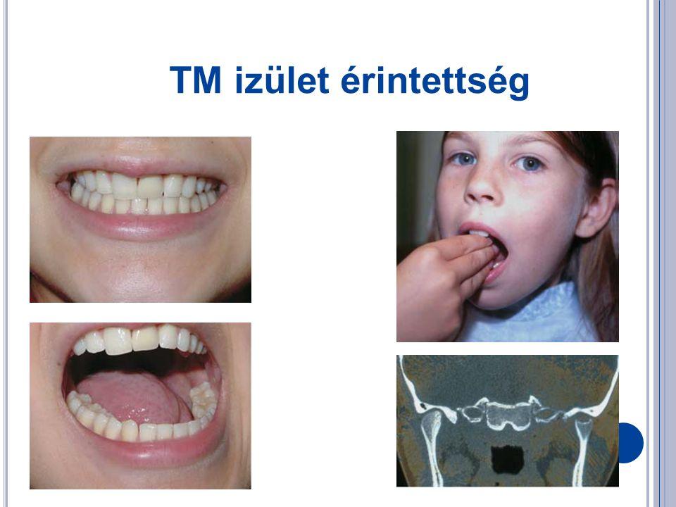 TM izület érintettség