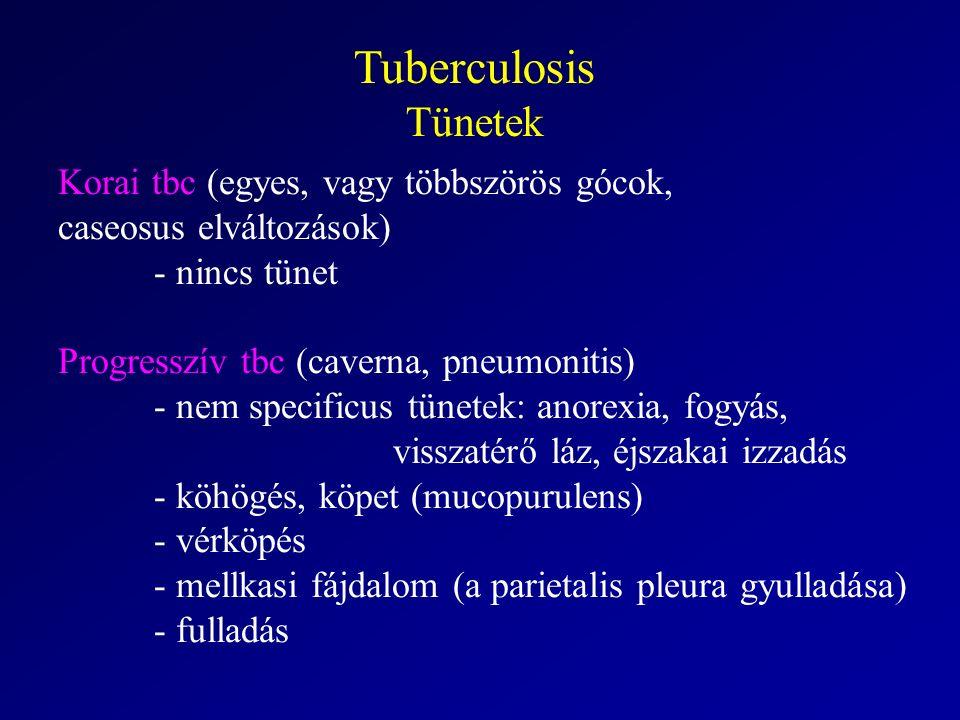 Tuberculosis Tünetek Korai tbc (egyes, vagy többszörös gócok, caseosus elváltozások) - nincs tünet Progresszív tbc (caverna, pneumonitis) - nem specificus tünetek: anorexia, fogyás, visszatérő láz, éjszakai izzadás - köhögés, köpet (mucopurulens) - vérköpés - mellkasi fájdalom (a parietalis pleura gyulladása) - fulladás