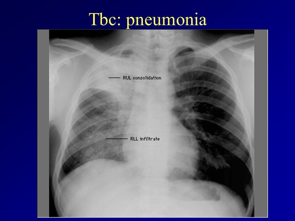 Tbc: pneumonia