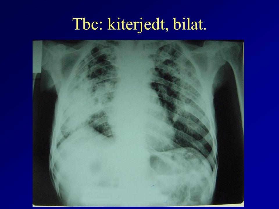 Tbc: kiterjedt, bilat.