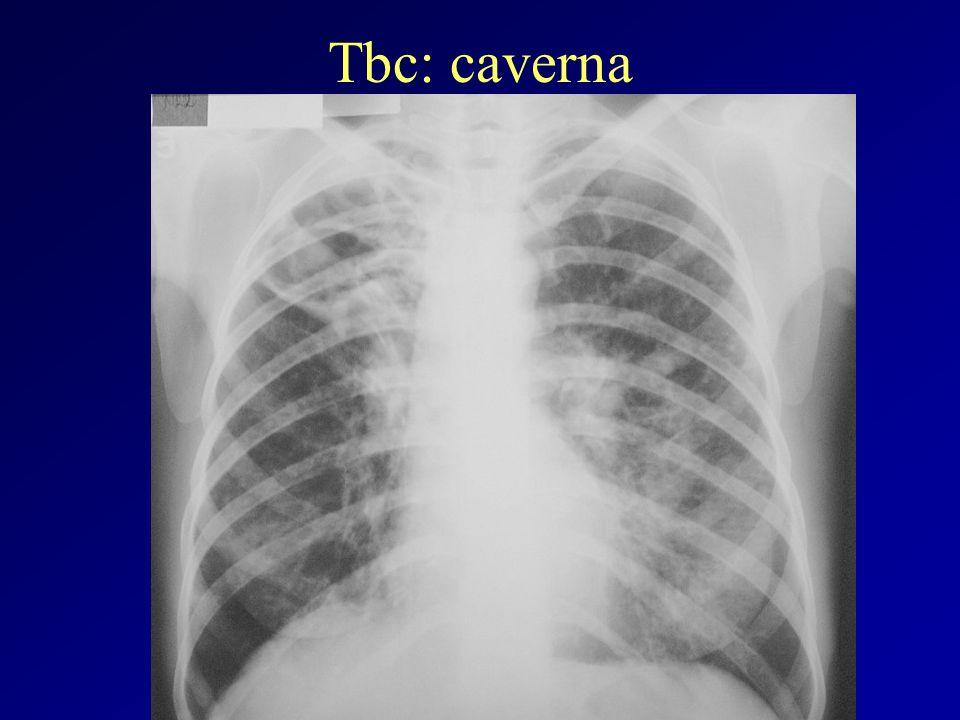 Tbc: caverna