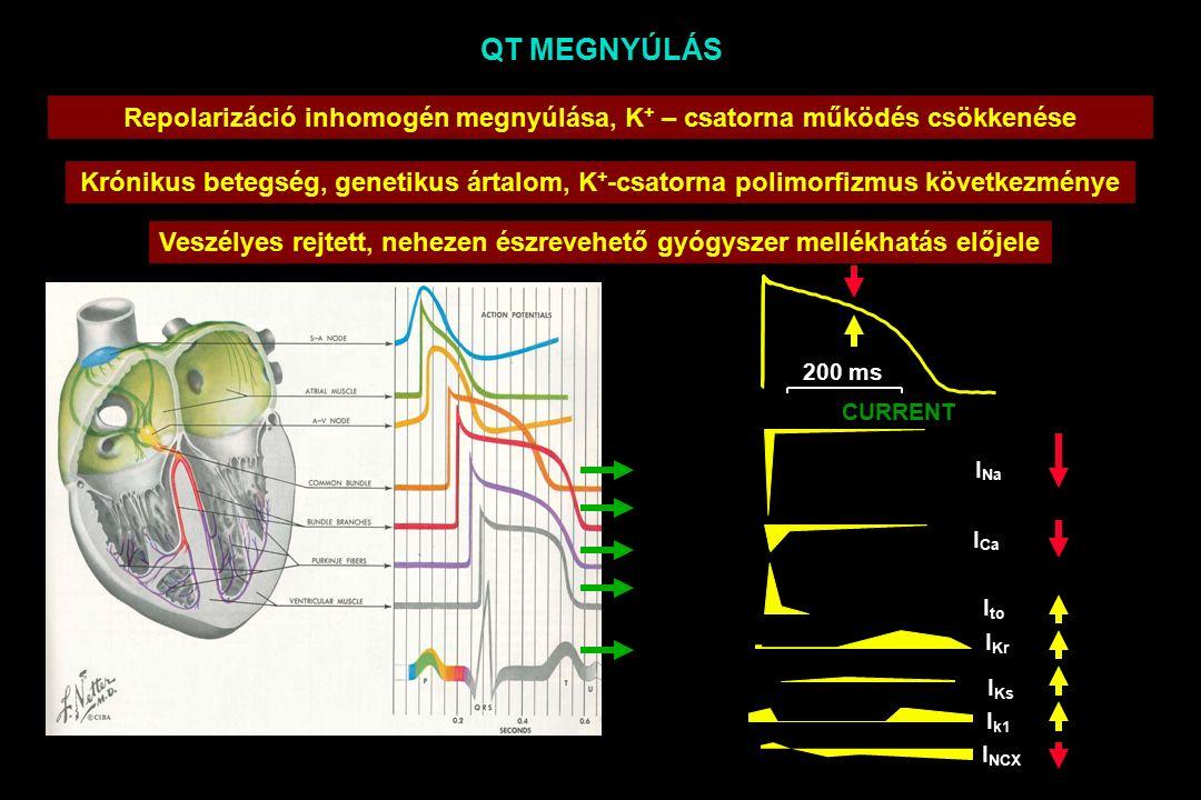 QT MEGNYÚLÁS Veszélyes rejtett, nehezen észrevehető gyógyszer mellékhatás előjele 200 ms I k1 CURRENT I NCX I Kr I Ks I to I Ca I Na Repolarizáció inhomogén megnyúlása, K + – csatorna működés csökkenése Krónikus betegség, genetikus ártalom, K + -csatorna polimorfizmus következménye