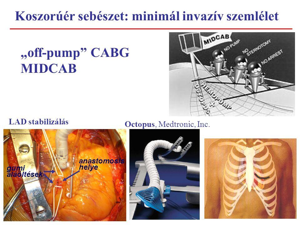 """Koszorúér sebészet: minimál invazív szemlélet """"off-pump CABG MIDCAB LAD stabilizálás Octopus, Medtronic, Inc."""