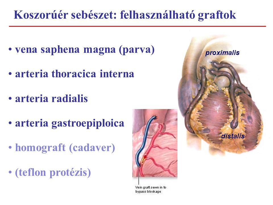 Koszorúér sebészet: felhasználható graftok vena saphena magna (parva) arteria thoracica interna arteria radialis arteria gastroepiploica homograft (cadaver) (teflon protézis) proximalis distalis