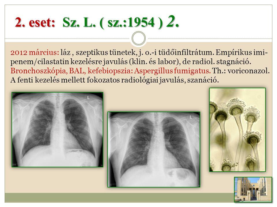 2012 március: láz, szeptikus tünetek, j.o.-i tüdőinfiltrátum.