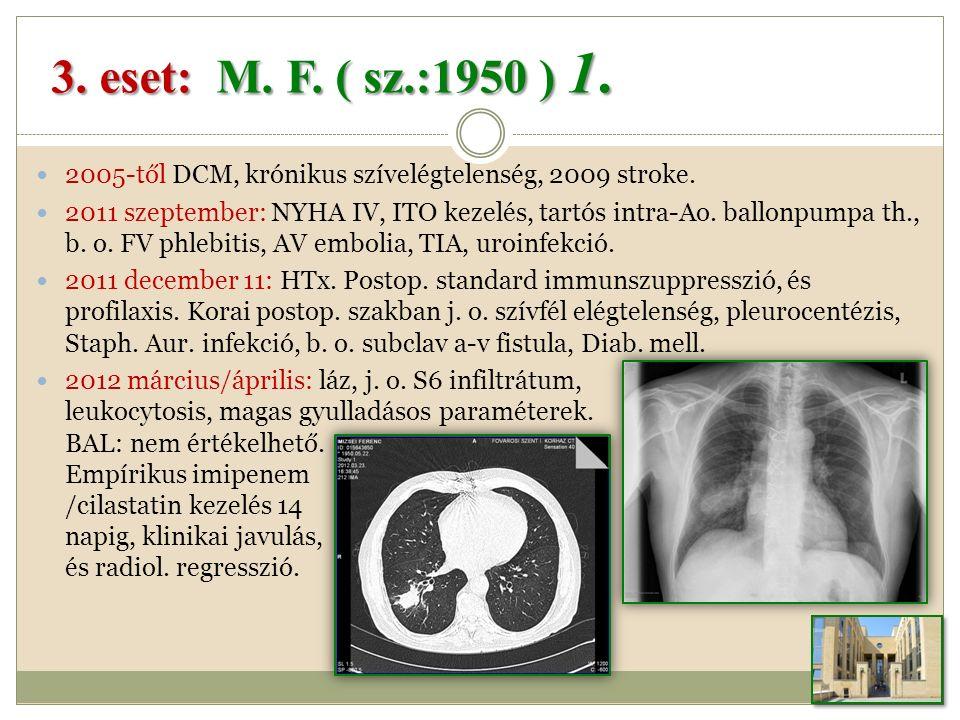 2005-től DCM, krónikus szívelégtelenség, 2009 stroke.