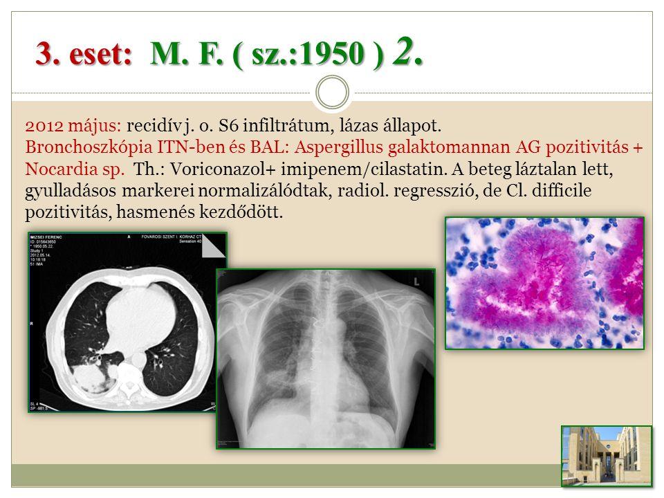 3.eset: M. F. ( sz.:1950 ) 2. 2012 május: recidív j.