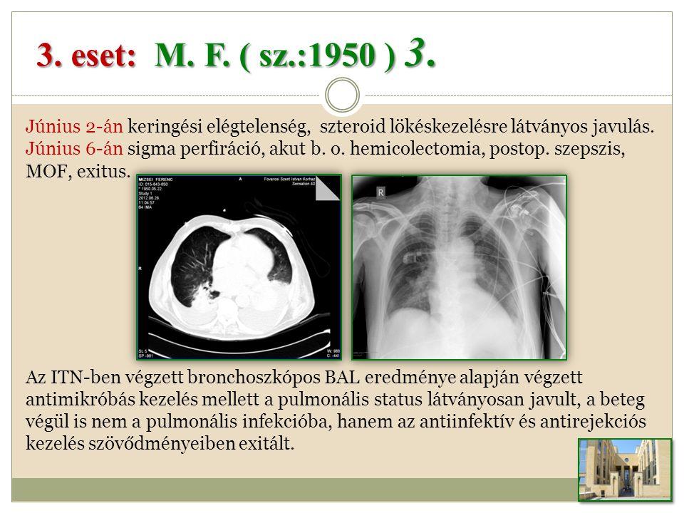 3.eset: M. F. ( sz.:1950 ) 3.