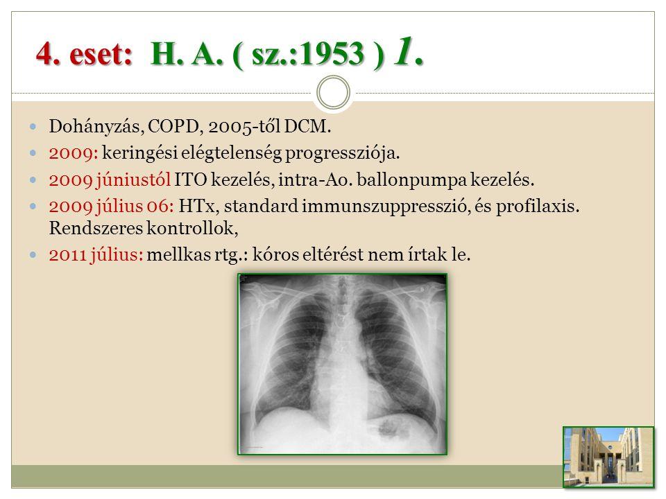 Dohányzás, COPD, 2005-től DCM.2009: keringési elégtelenség progressziója.