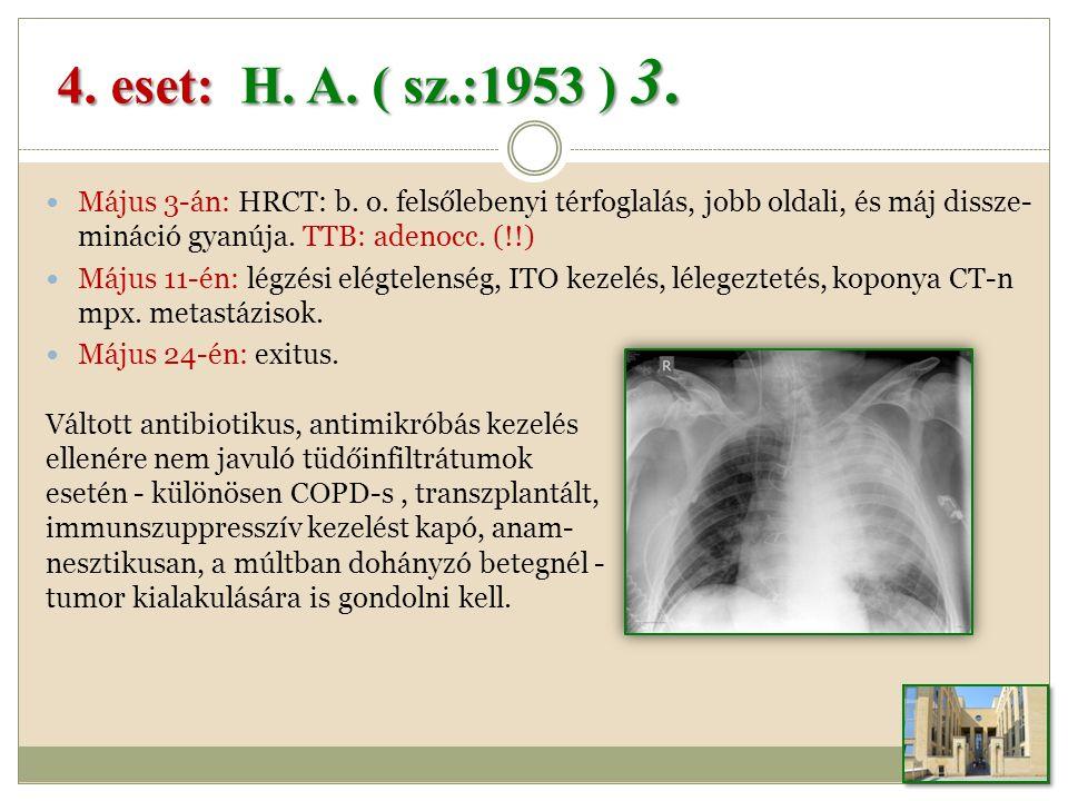 Május 3-án: HRCT: b.o. felsőlebenyi térfoglalás, jobb oldali, és máj dissze- mináció gyanúja.