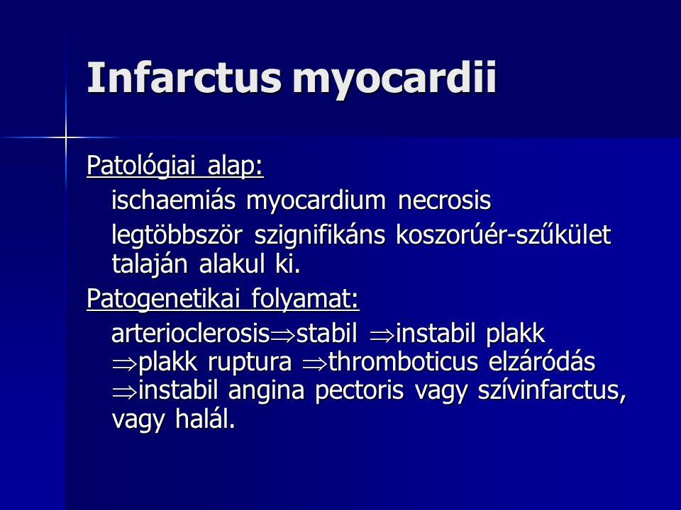 Infarctus myocardii Patológiai alap: ischaemiás myocardium necrosis ischaemiás myocardium necrosis legtöbbször szignifikáns koszorúér-szűkület talaján alakul ki.