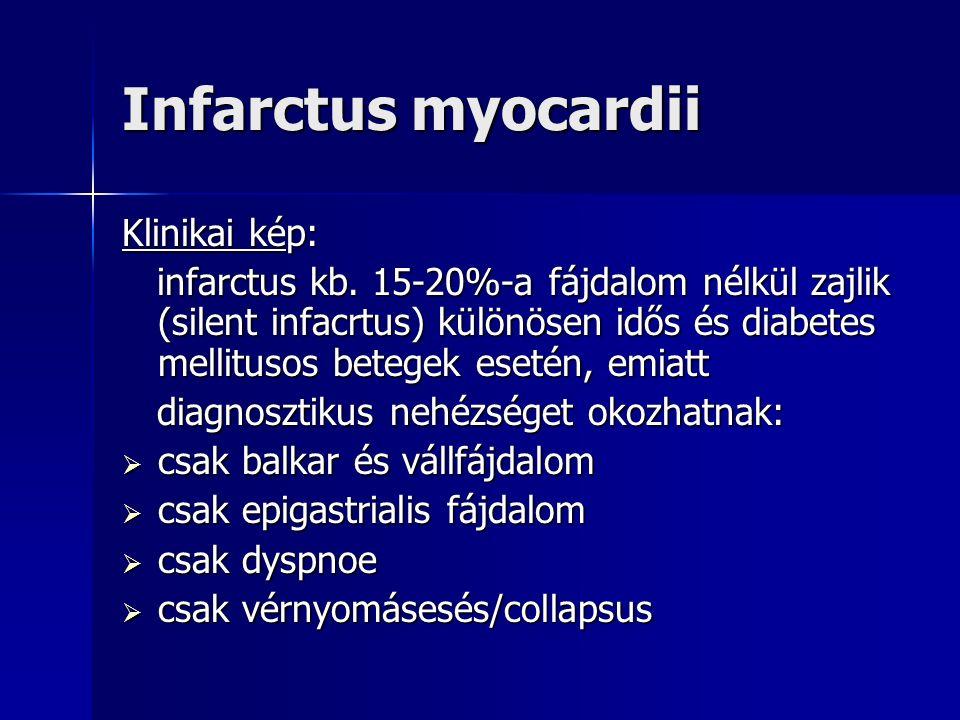 Infarctus myocardii Klinikai kép: infarctus kb.