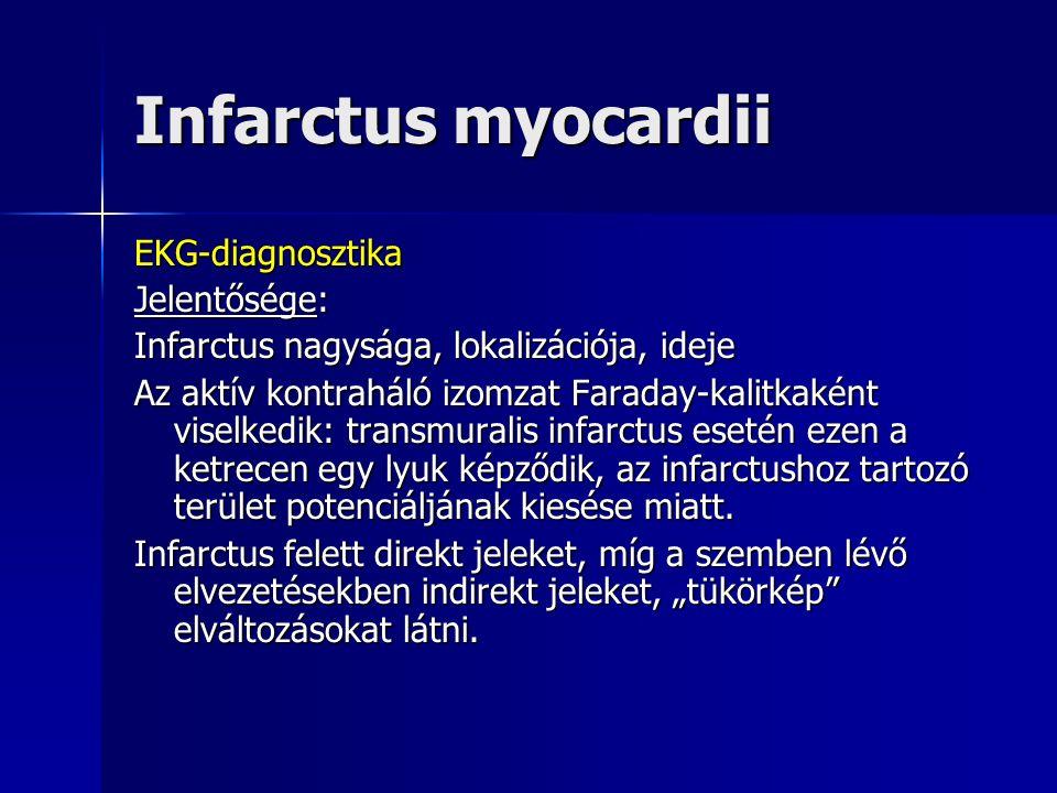Infarctus myocardii EKG-diagnosztika Jelentősége: Infarctus nagysága, lokalizációja, ideje Az aktív kontraháló izomzat Faraday-kalitkaként viselkedik: transmuralis infarctus esetén ezen a ketrecen egy lyuk képződik, az infarctushoz tartozó terület potenciáljának kiesése miatt.