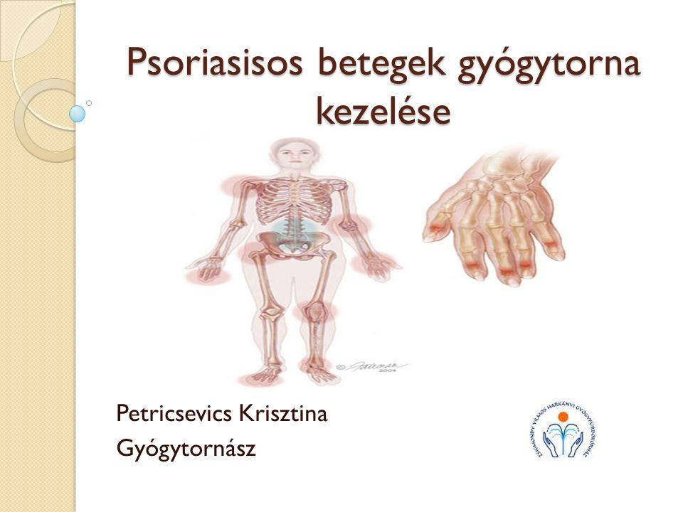 Psoriasisos betegek gyógytorna kezelése Petricsevics Krisztina Gyógytornász