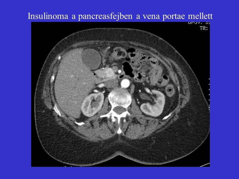 Insulinoma a pancreasfejben a vena portae mellett