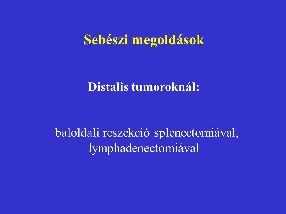 Sebészi megoldások Distalis tumoroknál: baloldali reszekció splenectomiával, lymphadenectomiával