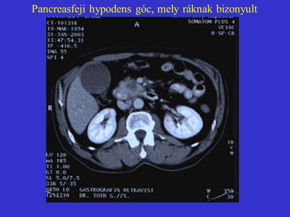 Solid pseudopapillaris tumor (SPT)