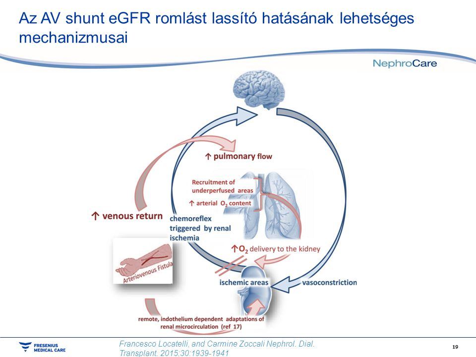 Az AV shunt eGFR romlást lassító hatásának lehetséges mechanizmusai 19 Francesco Locatelli, and Carmine Zoccali Nephrol. Dial. Transplant. 2015;30:193